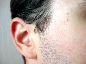 Es faustdick hinter den Ohren haben - © alvimann, morguefile.com